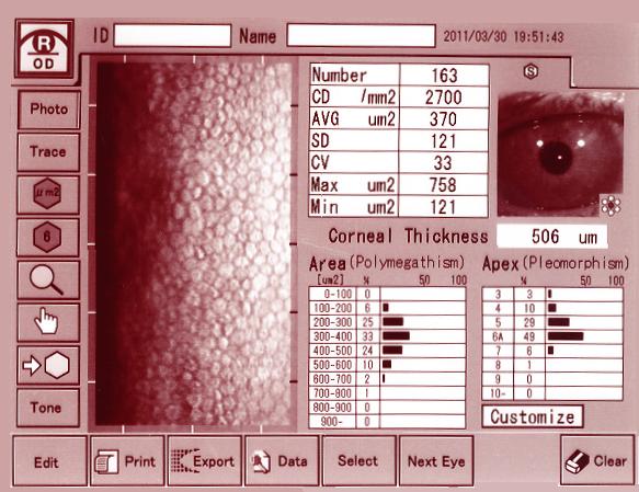 角膜内皮細胞数