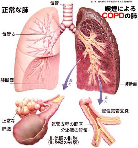 喫煙によるCOPDの肺